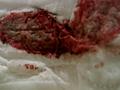 R0027_obutsusyusyuka2_007 【生理】すごい経血量で溢れている使用済みナプキン・タンポンは衝撃です!【汚物入れ】